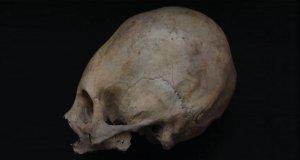 Исследование: у доинкского общества коллагуа деформированный череп был признаком высокого статуса. Фото: M.Velasco/Cornell University/Current Anthropology