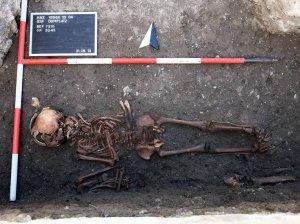 """Скелет подростка из Нижней Австрии, чьи зубы были превращены в своеобразные двузубые """"вилки"""" и """"пилы"""" сифилисом. Фото: Gaul et al. / Anthropologischer Anzeiger"""