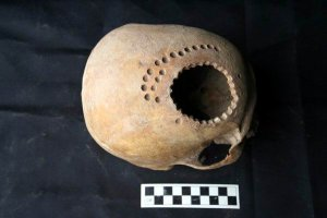 Для высверливания в черепе небольших дырочек древние медики использовали ручную дрель. Фото -  Danielle Kurin