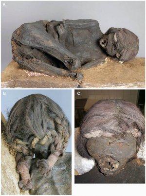Исследование инкской мумии в Баварии: болезнь Шагаса и ритуальное убийство. Фото - PLOS ONE