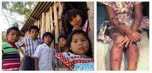 Дети Нгобе-Бугле (слева) и 8-летняя индианка с волдырями из-за солнечной аллергии синдрома Киндлера (справа)