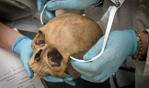 измерение черепа