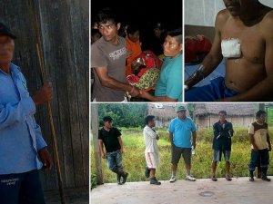 Пострадавшие индейцы нахуа. Фото: diariocorreo.pe