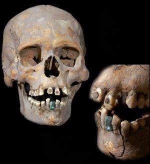 «Госпожа из Тлаилотлакана»: представлен найденный в Теотиуакане в 2014 г. скелет с деформированным черепом и инкрустациями в зубах. Фото: INAH
