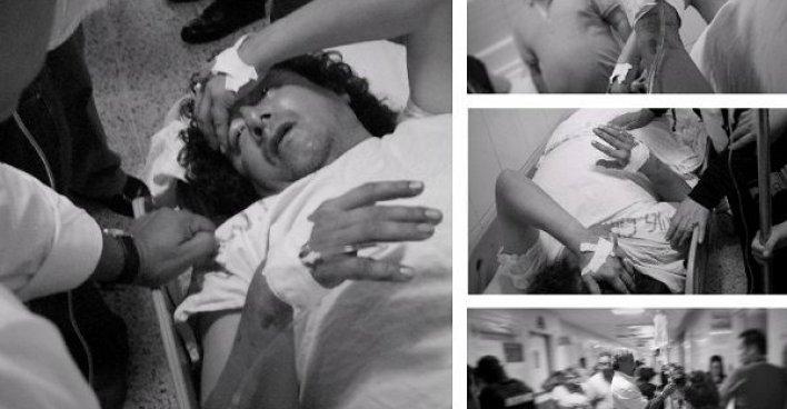Гондурасский правозащитник и журналист Феликс Молина, осуждавший переворот 2009 года, подвергся нападению неизвестных
